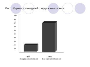 Рис.1. Оценка уровня детей с нарушением осанки.