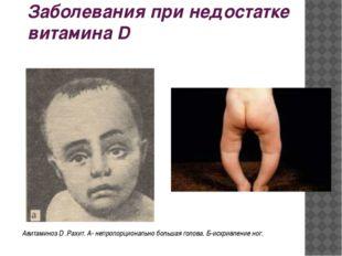 Заболевания при недостатке витамина D Авитаминоз D .Рахит. А- непропорциональ