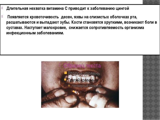 Длительная нехватка витамина С приводит к заболеванию цингой Появляется кров...