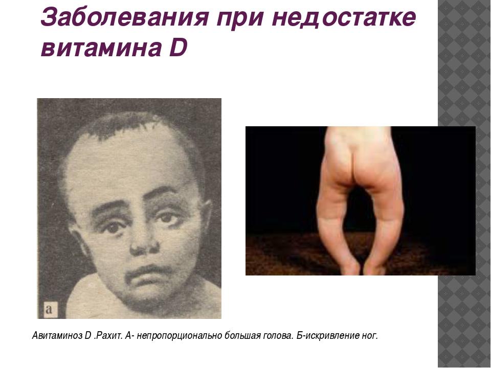 Заболевания при недостатке витамина D Авитаминоз D .Рахит. А- непропорциональ...