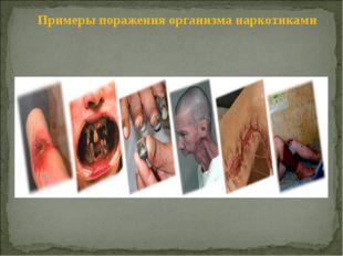 Примеры поражения организма наркотиками