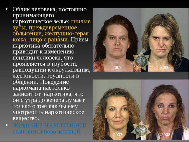 Облик человека, постоянно принимающего наркотическое зелье: гнилые зубы, преж...
