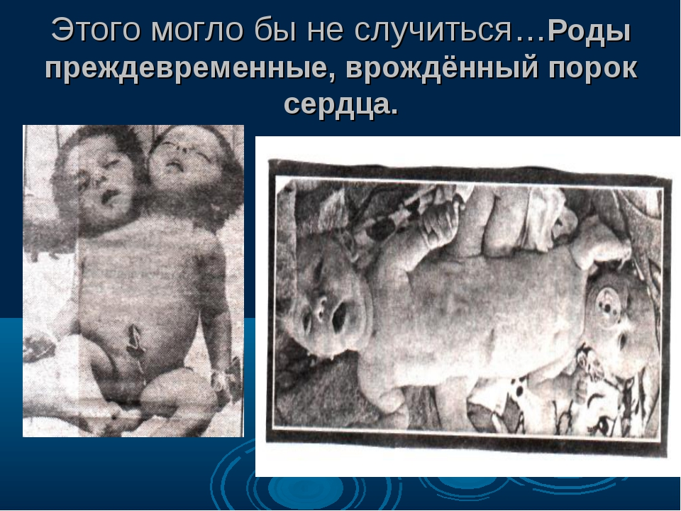 Этого могло бы не случиться…Роды преждевременные, врождённый порок сердца.