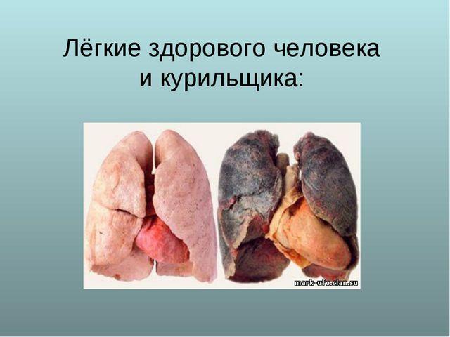 Лёгкие здорового человека и курильщика: