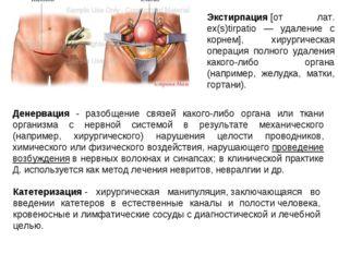Экстирпация[от лат. ex(s)tirpatio — удаление с корнем], хирургическая операц