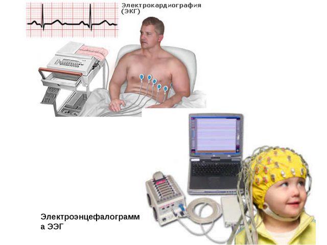 Электроэнцефалограмма ЭЭГ