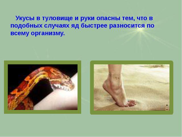 Укусы в туловище и руки опасны тем, что в подобных случаях яд быстрее разнос...