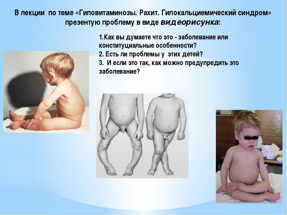 В лекции по теме «Гиповитаминозы. Рахит. Гипокальциемический синдром» презент...