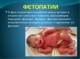 ФЕТОПАТИИ В фазе плацентарного развития между матерью и плодом уже существует