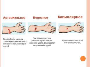 Артериальное При глубоком ранении: кровь ярко-красного цвета, изливается пуль