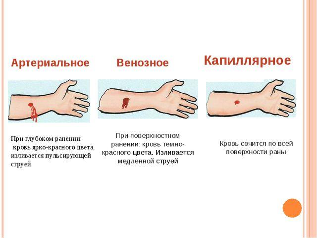 Артериальное При глубоком ранении: кровь ярко-красного цвета, изливается пуль...
