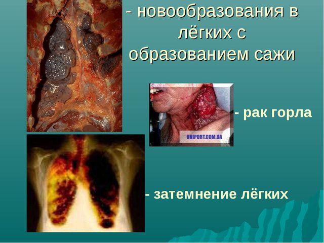 - новообразования в лёгких с образованием сажи - рак горла - затемнение лёгких