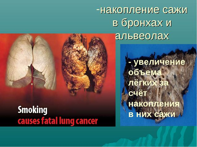 накопление сажи в бронхах и альвеолах 1. cf; - увеличение объема лёгких за сч...
