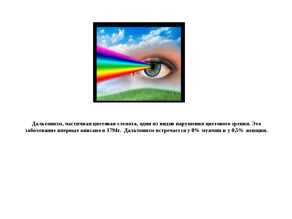 Дальтонизм, частичная цветовая слепота, один из видов нарушения цветового зре...