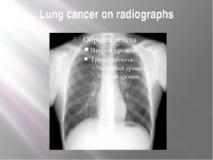 Lung cancer on radiographs
