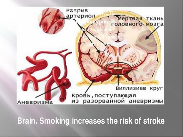 Brain. Smoking increases the risk of stroke