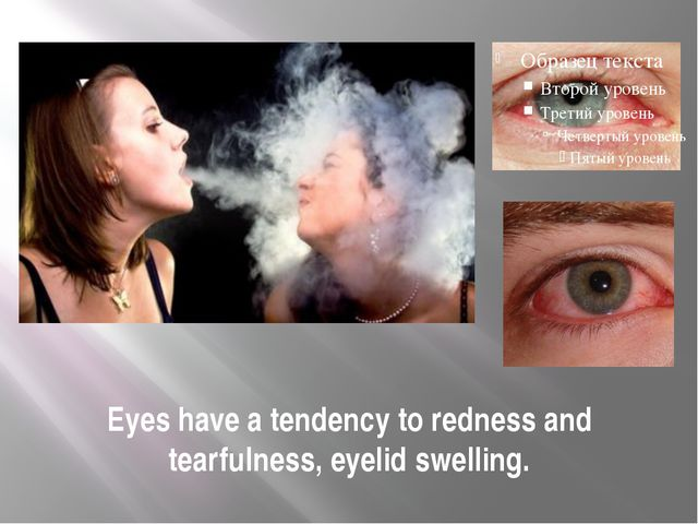 Eyes have a tendency to redness and tearfulness, eyelid swelling.
