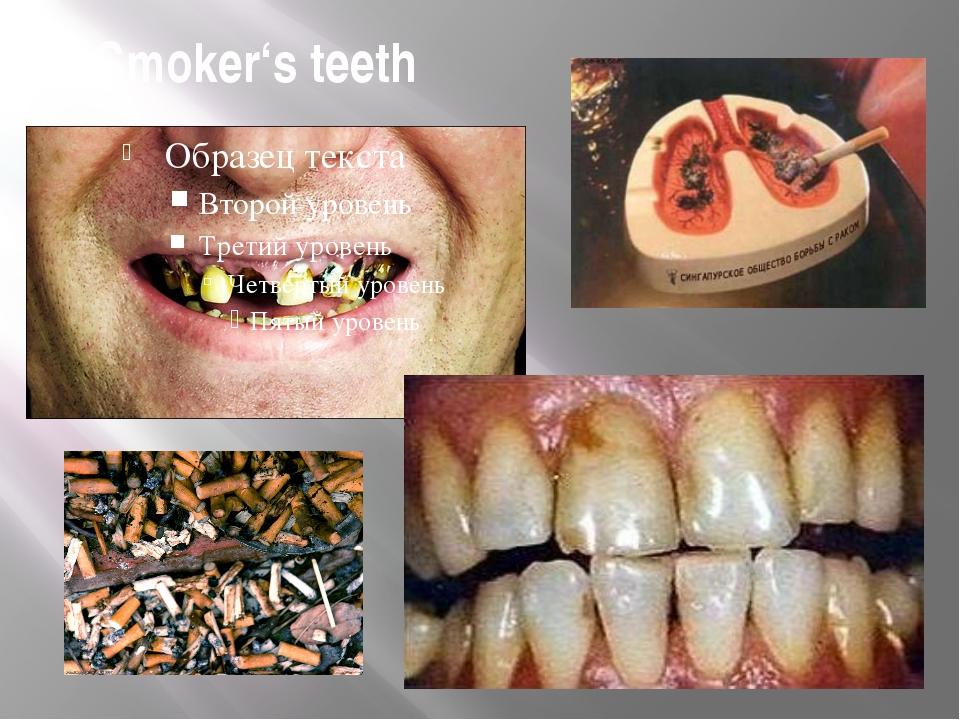 Smoker's teeth