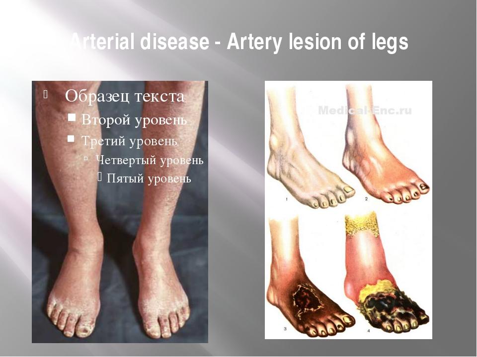 Arterial disease - Artery lesion of legs