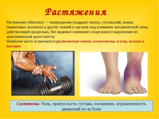 Растяжение (distorsia) — повреждение (надрыв) связок, сухожилий, мышц (мышечн