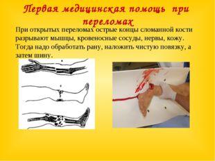Первая медицинская помощь при переломах При открытых переломах острые концы с