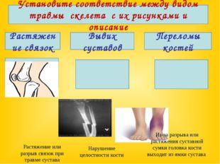 Установите соответствие между видом травмы скелета с их рисунками и описание
