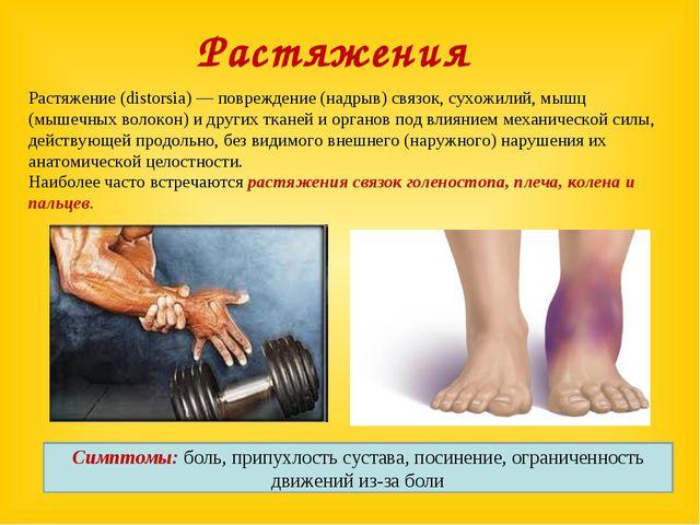 Растяжение (distorsia) — повреждение (надрыв) связок, сухожилий, мышц (мышечн...