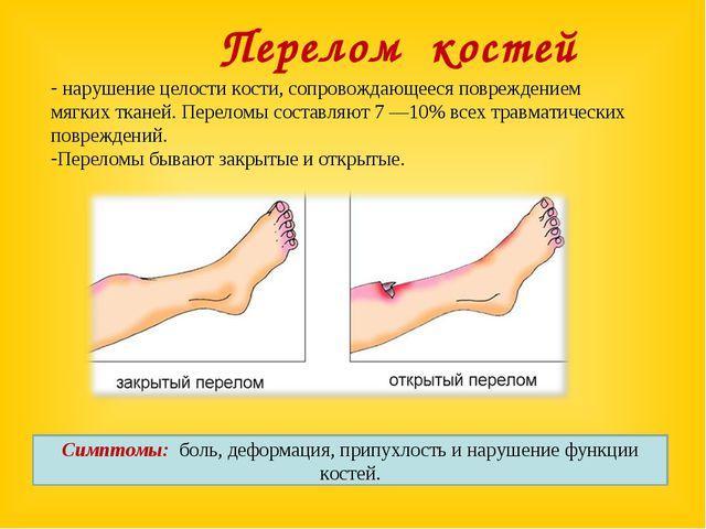 Перелом костей нарушение целости кости, сопровождающееся повреждением мягких...