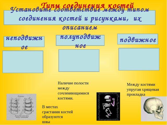 Типы соединения костей Установите соответствие между типом соединения костей...
