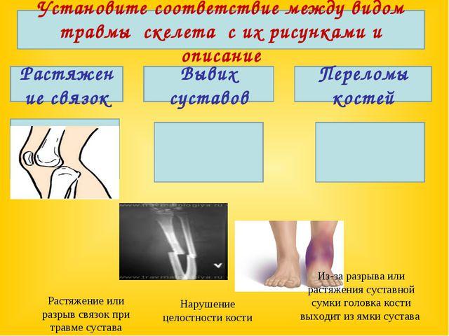 Установите соответствие между видом травмы скелета с их рисунками и описание...