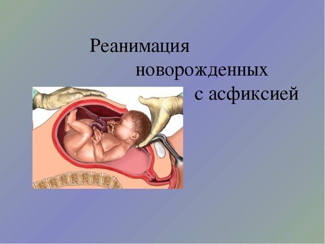 Реанимация новорожденных с асфиксией