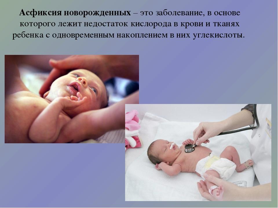 Асфиксия новорожденных – это заболевание, в основе которого лежит недостаток...