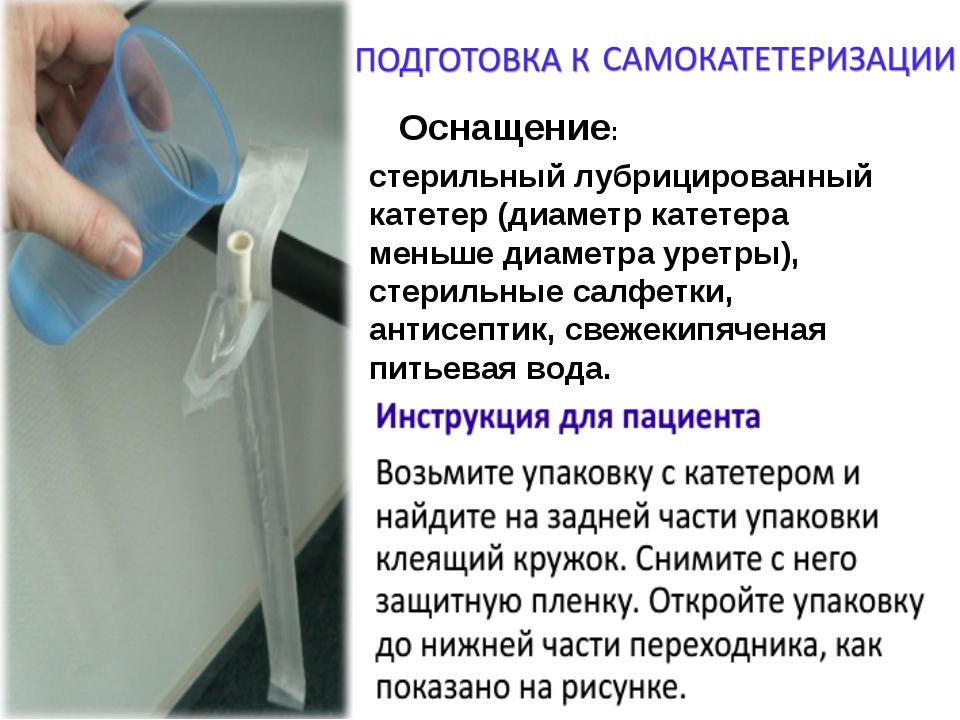 Оснащение: стерильный лубрицированный катетер (диаметр катетера меньше диамет...