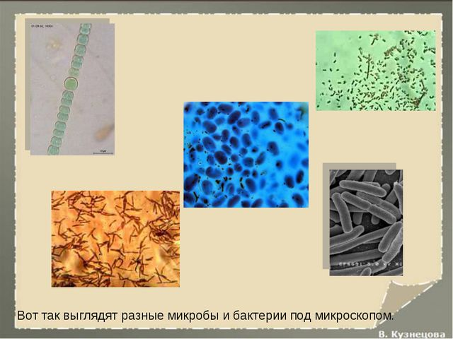 Вот так выглядят разные микробы и бактерии под микроскопом.