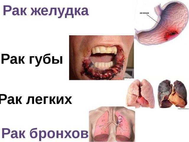 Рак желудка Рак легких Рак губы Рак бронхов