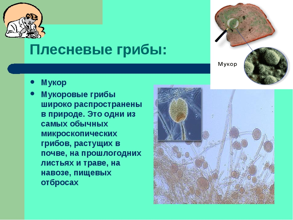 Плесневые грибы: Мукор Мукоровые грибы широко распространены в природе. Это о...