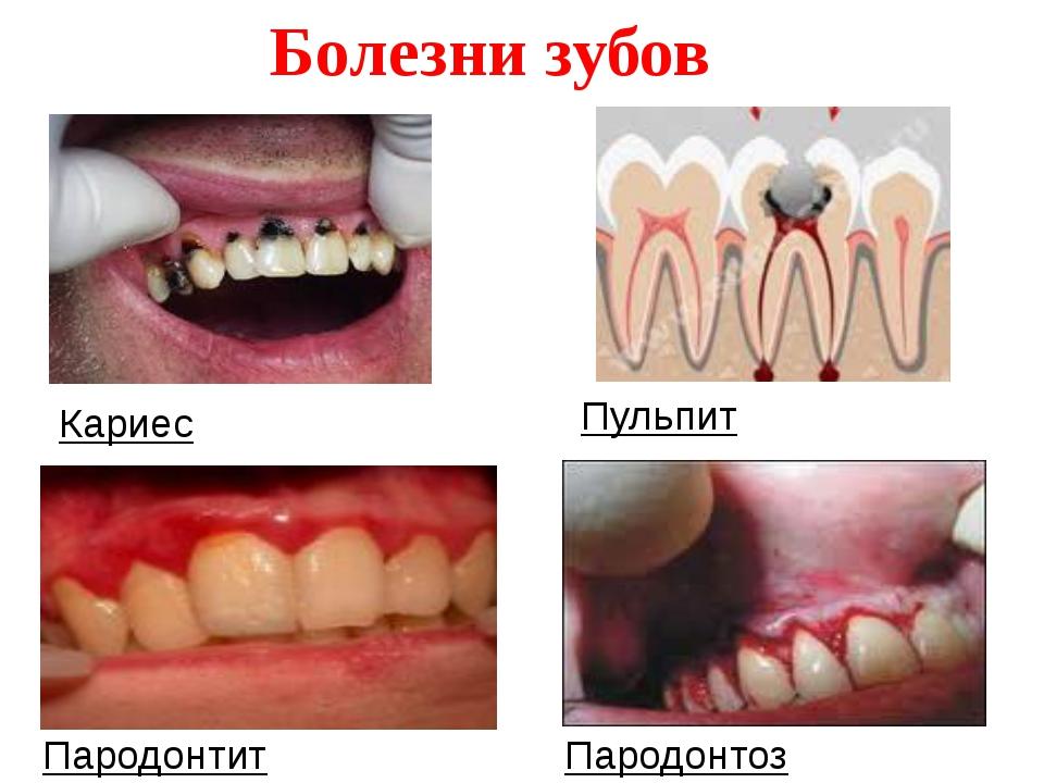 Кариес Пульпит Пародонтит Пародонтоз Болезни зубов