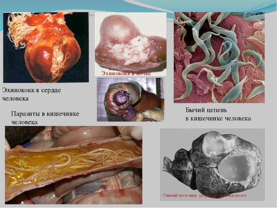 Эхинококк в почке Эхинококк в сердце человека Паразиты в кишечнике человека Б...