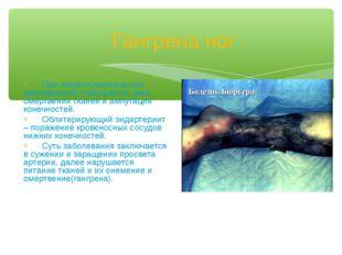 Гангрена ног При атеросклеротических заболеваниях повышается риск омертвения