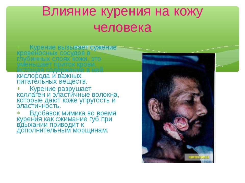 Влияние курения на кожу человека Курение вызывает сужение кровеносных сосудов...