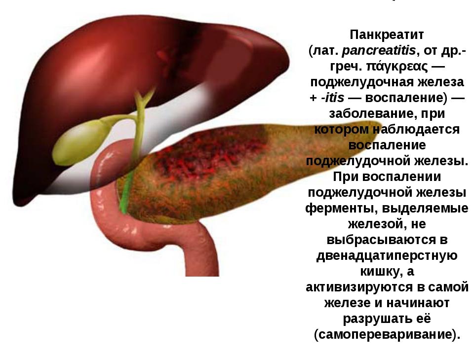 Панкреатит (лат.pancreatitis, от др.-греч. πάγκρεας— поджелудочная железа +...