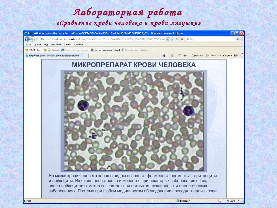 Лабораторная работа «Сравнение крови человека и крови лягушки»