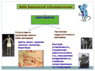 Виды витаминной недостаточности АВИТАМИНОЗ Отсутствие в организме какого-либо