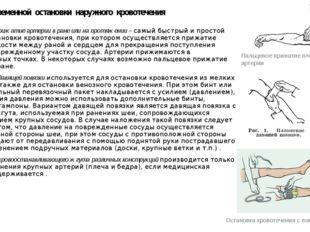 Способы временной остановки наружного кровотечения - Пальцевое прижатие а