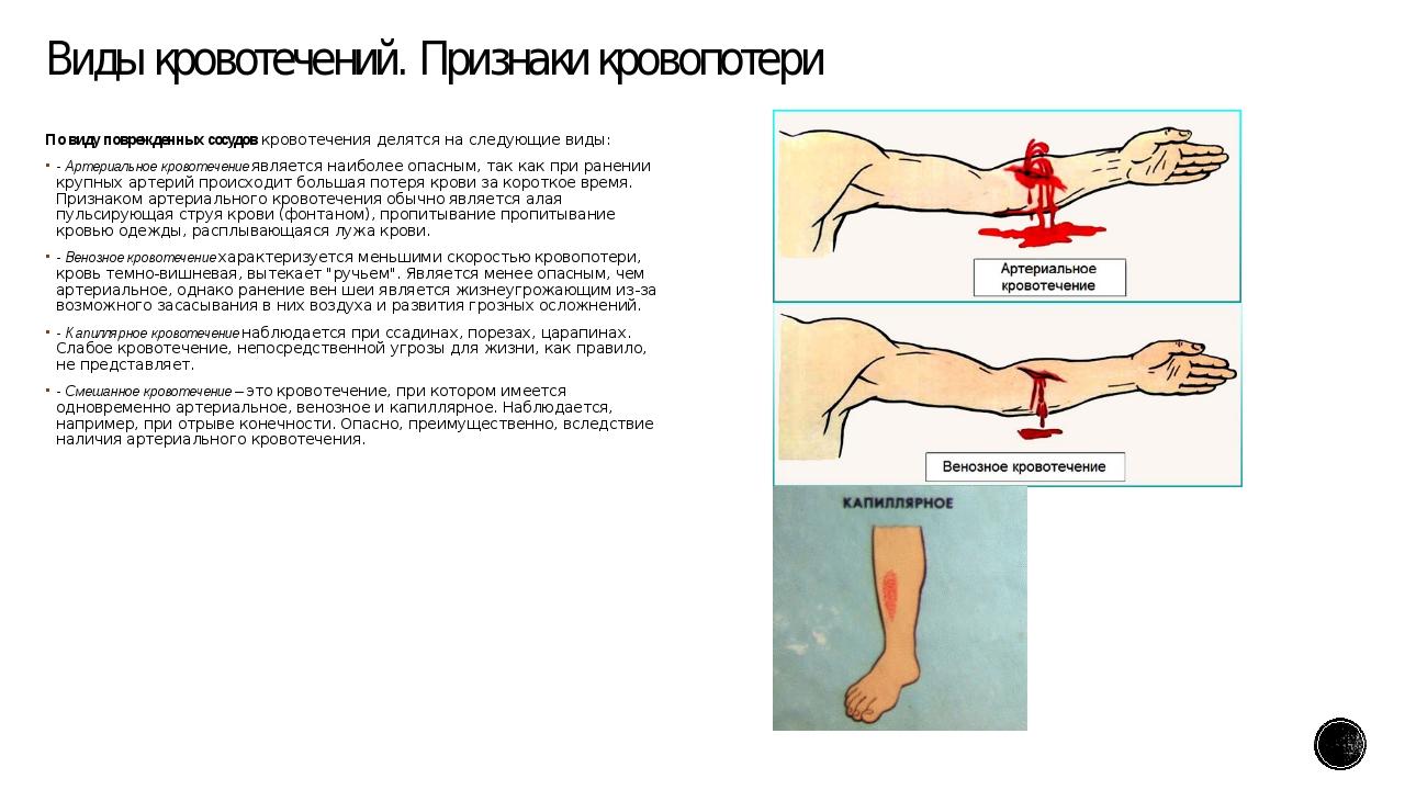 Виды кровотечений. Признаки кровопотери По виду поврежденных сосудовкровотеч...