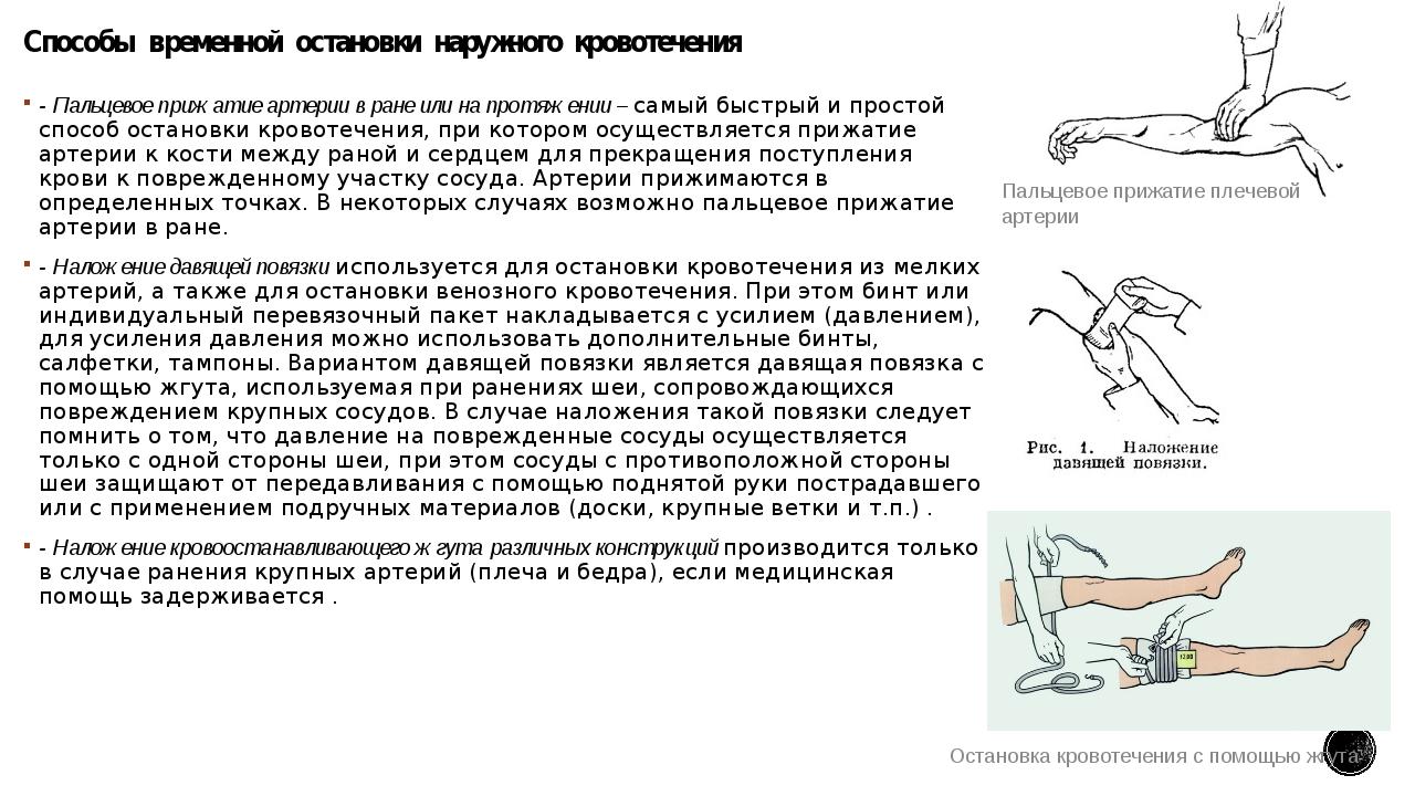 Способы временной остановки наружного кровотечения - Пальцевое прижатие а...