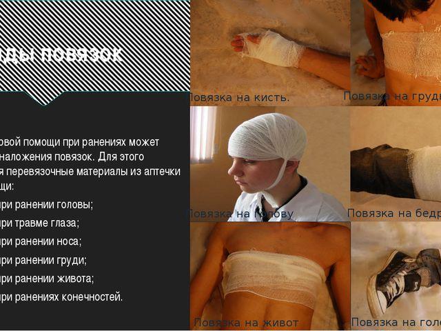Виды повязок Оказание первой помощи при ранениях может потребовать наложения...