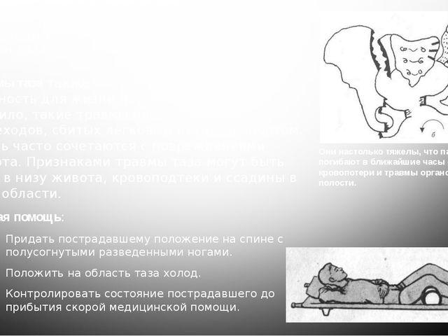 Основные проявления травмы таза. Транспортное положение. Приемы фиксации кост...