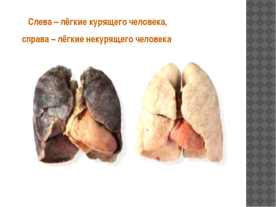 Слева – лёгкие курящего человека, справа – лёгкие некурящего человека