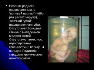 """Ребенок родился недоношенным, с """"волчьей пастью"""" (нёбо рта растёт наружу), """"з"""